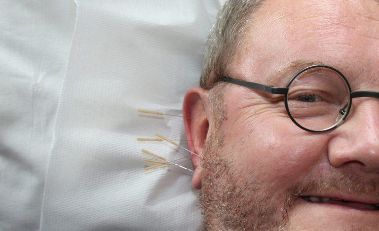 auriculoterapia para adelgazar sirven